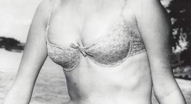 The Oriental Bikini Scandal